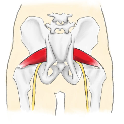 how to fix piriformis syndrome